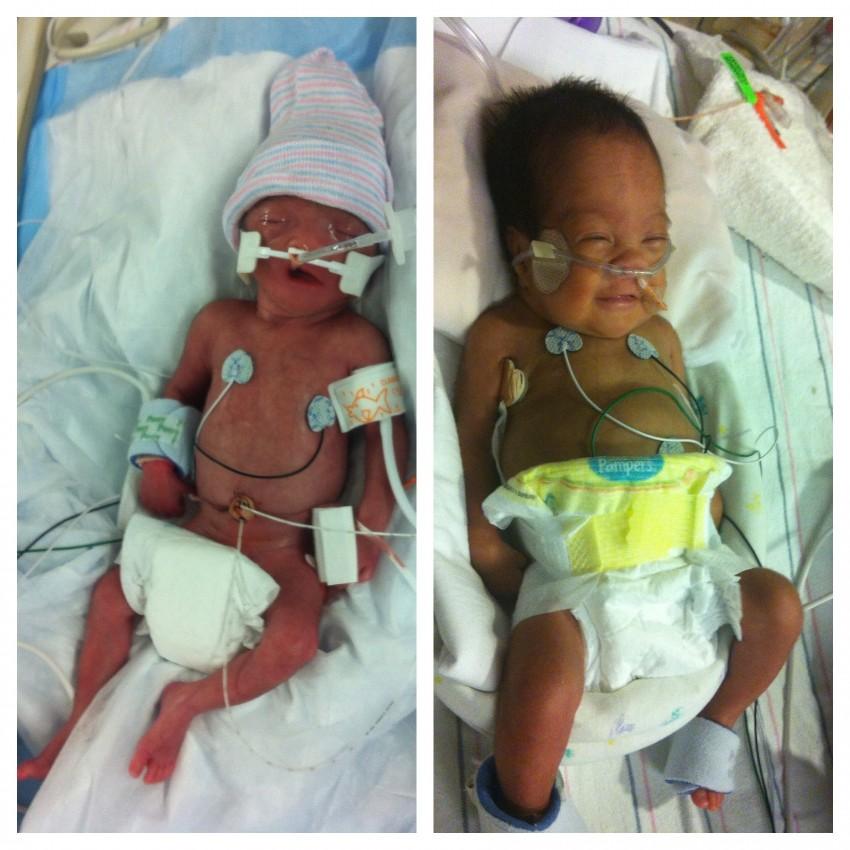 preemie-baby-success-stories